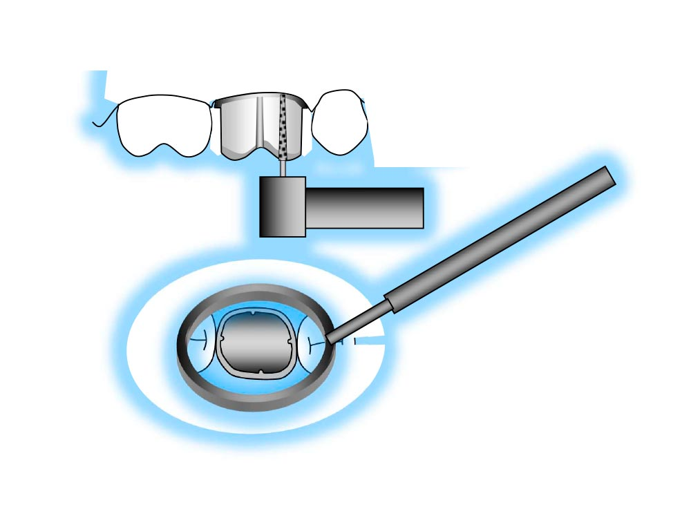 Protocolli clinici per inlay, faccette e per protesi totali fisse e mobili illustrati con 337 grafici